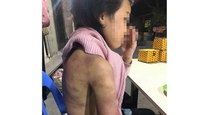 Vụ bé gái 12 tuổi bị mẹ đẻ bạo hành dã man: Đủ dấu hiệu phạm tội, phải khởi tố