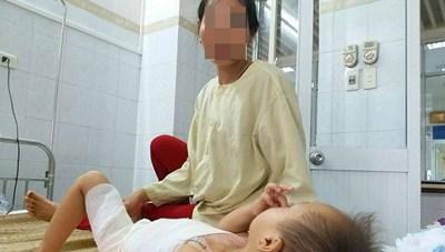 Trẻ em trước nguy cơ bỏng