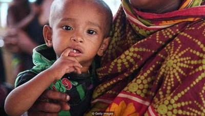 Suy dinh dưỡng gia tăng trên phạm vi toàn cầu