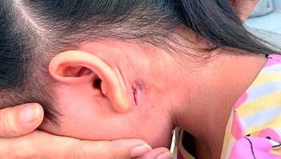 Bình Định: Một bệnh nhân nhiễm Whitmore