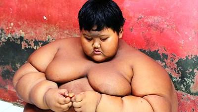 Cậu bé béo nhất thế giới nặng gần 2 tạ 'đổi đời' vì giảm cân