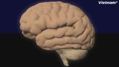 [Videographics] Sự nguy hiểm của bệnh thoái hóa thần kinh Alzeimer