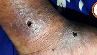 Bàn chân thủng lỗ chỗ vì căn bệnh tự dị ứng nguy hiểm