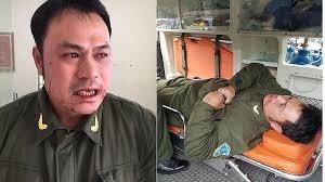 Đề nghị khởi tố 'cò mồi' taxi đánh gãy răng nhân viên an ninh sân bay