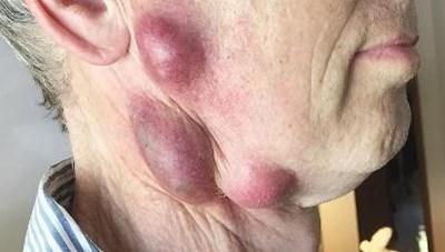 Lây bệnh lạ từ mèo, người đàn ông mọc u trên cổ và mặt