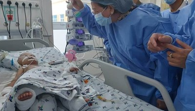 Một bé trong cặp song sinh sau tách dính đã cai được máy thở