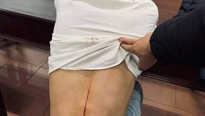 Gia Lai: Một phóng viên bị kẻ lạ đuổi chém trọng thương