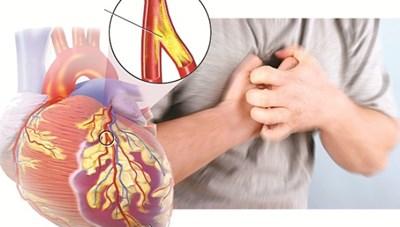 Bệnh nhân tim mạch dễ gặp nguy hiểm khi trời lạnh