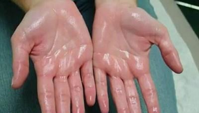 Bệnh đổ mồ hôi chân, tay trong những ngày lạnh: Cách điều trị hiệu qủa tại nhà