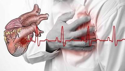 Cảnh báo nguy cơ suy tim, tai biến, đột quỵ