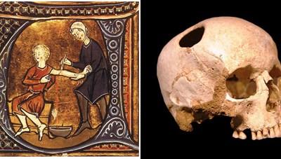 Những phương pháp điều trị y học cổ xưa mãi mãi lưu lại trong quá khứ