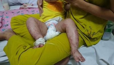 Bác sĩ cảnh báo trẻ biến chứng khi bố mẹ tự chữa tay chân miệng