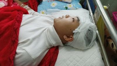 Nam sinh lớp 11 bị đánh vỡ sọ não