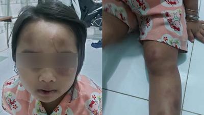 Bình Dương: Phẫn nộ vợ chồng cô ruột đánh đập cháu gái 6 tuổi dã man