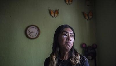 Mexico: Nạn nhân sống sót sau tấn công bằng axit đoàn kết thay đổi số phận
