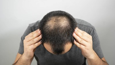 Tìm ra tế bào gốc có thể giúp tái tạo tóc