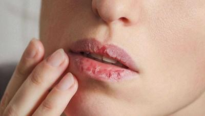 Nguyên nhân gây bệnh viêm môi khô nứt nẻ, bong tróc?