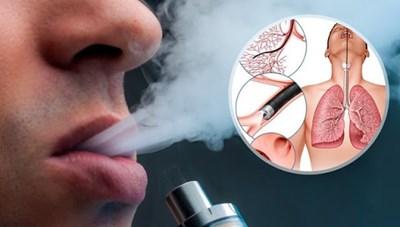 Cảnh báo từ thuốc lá điện tử