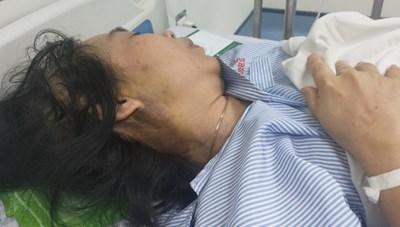 Vụ bà Lê Thị Bích Dung bị hành hung: Cần xử lý nghiêm trách nhiệm của từng cá nhân liên quan
