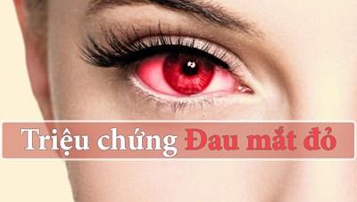 Khó chịu với đau mắt đỏ