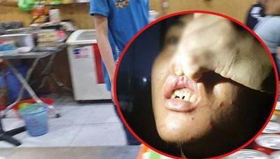 [VIDEO] Nhân viên quán bánh xèo bị chủ tra tấn bằng chầy sắt, bàn chông đinh