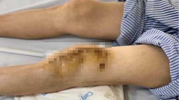 Lần đầu tiên mổ thay khớp gối nhân tạo cho bệnh nhân lao