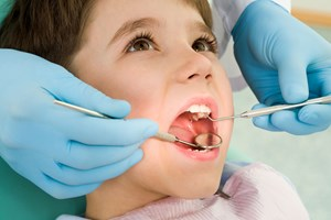 Khi nào nên phẫu thuật cắt amidan?