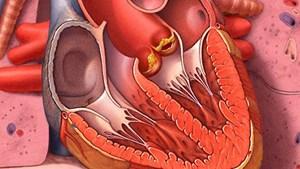 Đề phòng viêm nội tâm mạc do nhiễm khuẩn răng miệng