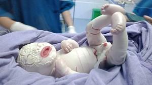 Trẻ sơ sinh ở Quảng Ninh mắc bệnh hiếm gặp, toàn thân bao phủ da dày bị rạn nứt thành từng mảng