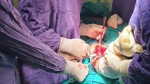 Phẫu thuật kết hợp cùng lúc 5 xương bị gãy