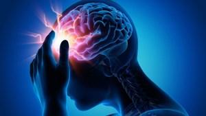 Cấp cứu và điều trị thành công người chảy máu màng não