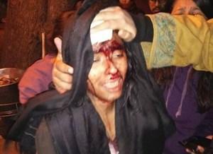 Ấn Độ: Ẩu đả tại Đại học JNU danh tiếng, ít nhất 23 người bị thương