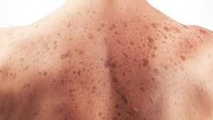 Cảnh giác trước nguy cơ ung thư da