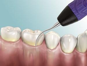 Nguy cơ cao từ bệnh răng miệng