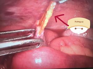 Cứu sống bệnh nhân bị xương cá đâm thủng ruột