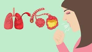 Việt Nam chưa phát hiện bệnh viêm phổi cấp nguy hiểm