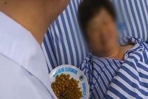 Loại bỏ 468 viên sỏi mật ra khỏi cơ thể bệnh nhân