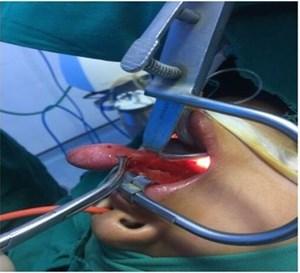 Phẫu thuật thành công khối u di động trong họng