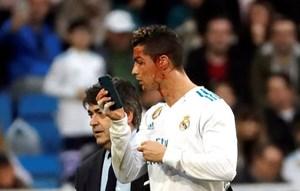 Ronaldo chảy máu đầm đìa sau khi ghi bàn ở La Liga