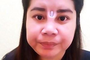 Sốc với khuôn mặt phẫu thuật thẩm mỹ hỏng