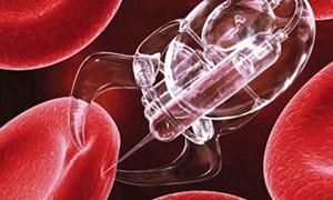 Thử nghiệm thành công nanorobot tiêu diệt ung thư