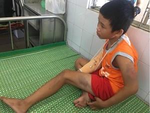 Bệnh viện Đà Nẵng tiếp nhận bé trai bán vé số bị cướp đánh thương tâm