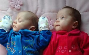 Cặp song sinh chào đời từ người mẹ chết não hơn 4 tháng