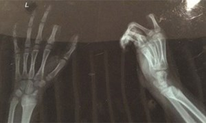 Cắt đứt ngón tay sau khi bị bố mắng chơi game nhiều