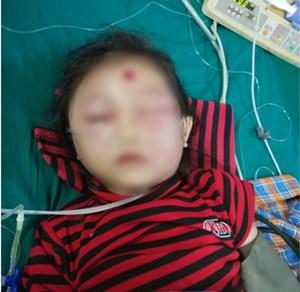 Chỉ một nốt mụn nhỏ trên mặt, bé gái 6 tuổi suýt mất mạng
