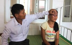Cô gái 20 năm mang nỗi đau trên mặt