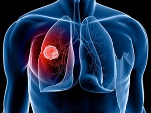 Hơn 20.000 người chết vì ung thư phổi mỗi năm