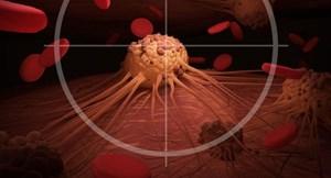 Khoa học chỉ ra yếu tố làm tăng nguy cơ ung thư
