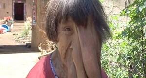 Người phụ nữ khốn khổ với căn bệnh lạ đáng sợ