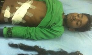 Phát hiện thai nhi trong người chàng trai Ấn Độ